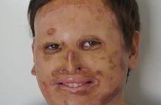 Пациент со множественными ожогами получил новое лицо