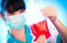 Изменение скорости оседания эритроцитов (СОЭ): возможные причины