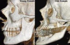 Будущее пластической хирургии – за «подтяжкой» костей?