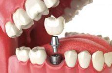5 мифов об имплантации зубов развеивает хирург-имплантолог