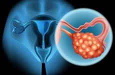 Врачи рассказали, как заподозрить рак яичников на ранней стадии