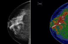 Ученые советуют выполнять профилактическую маммографию с сорока лет