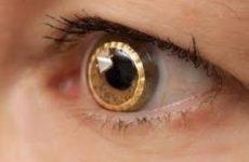 Правила использования одноразовых линз: объясняет офтальмолог