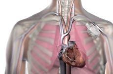 Уже 25 лет в ставропольском кардиодиспансере проводят операции по имплантации кардиостимуляторов
