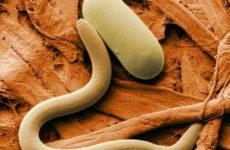 Ученые получили важные данные о паразитах, провоцирующих слоновость