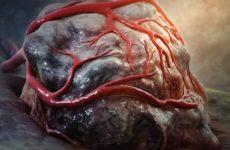 Недостаток кислорода в опухолях способствует метастазированию