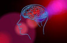 Ангионевролог: понятия «микроинсульт» не существует