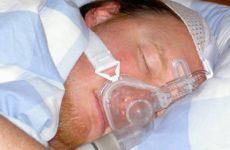 Исследования подтверждают связь между апноэ во сне и болезнью Альцгеймера
