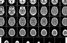 Ученые смогли обнаружить отпечаток травмы на снимках мозга