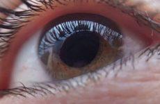 Белок тенасцин-C может помочь в лечении глаукомы
