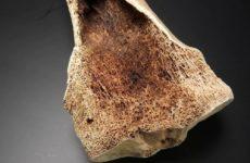 Стероидные ингаляторы и таблетки от астмы повышают хрупкость костей