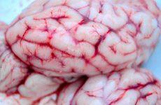 Судороги, утомляемость, тошнота: первые признаки рака мозга