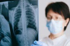 Сканы легких пациентов с инсультом выявляют ранний ковид
