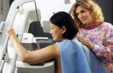 Маммограммы снижают смертность от рака груди наполовину