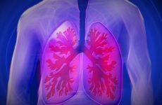Мясников рассказал, как защититься от пневмонии