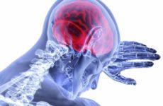 Избыток кальция может влиять на исходы инсульта