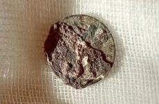 Мужчине извлекли из носа монету, которая провела там 50 лет