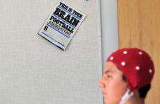 Обнаружить сотрясение мозга можно по слюне