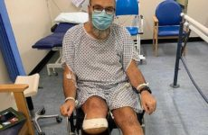 У здорового мужчины из-за коронавируса ампутировали ногу
