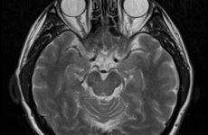 Визуализация мозга позволяет прогнозировать ПТСР