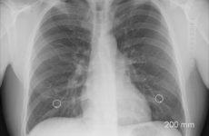 Как проверить здоровье лёгких в домашних условиях