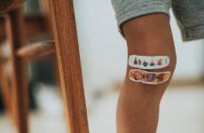 Социальные факторы оказывают сильное воздействие на травмы колена у девушек