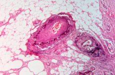 Новые патогены могут провоцировать колоректальный рак