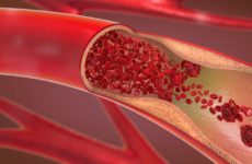Риск тромба из-за COVID-19 в 10 раз выше