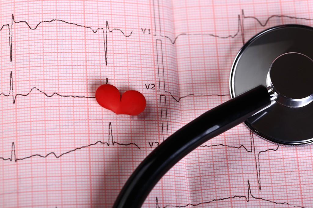 Если вы станете свидетелем остановки сердца, ваши действия могут спасти жизнь, Здоровье и современная медицина