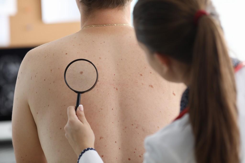Новые сведения о меланоцитах могут привести к более целенаправленному лечению меланомы, Здоровье и современная медицина