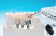 Поверхности зубных имплантатов играют важную роль в прикреплении тканей, защищая от нежелательных бактерий